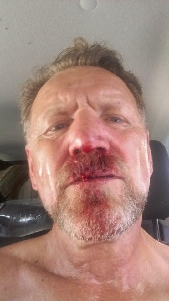 Избиение руководства парка «Тузловские лиманы»: открыли три уголовных дела