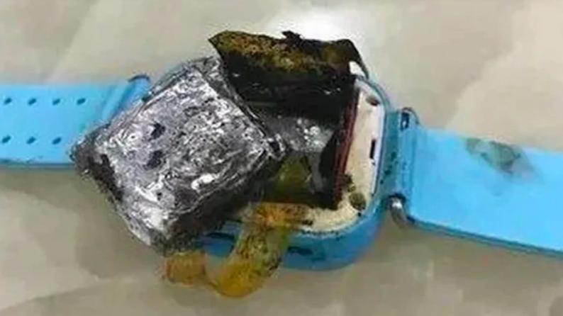 Умные часы загорелись на четырёхлетней девочке