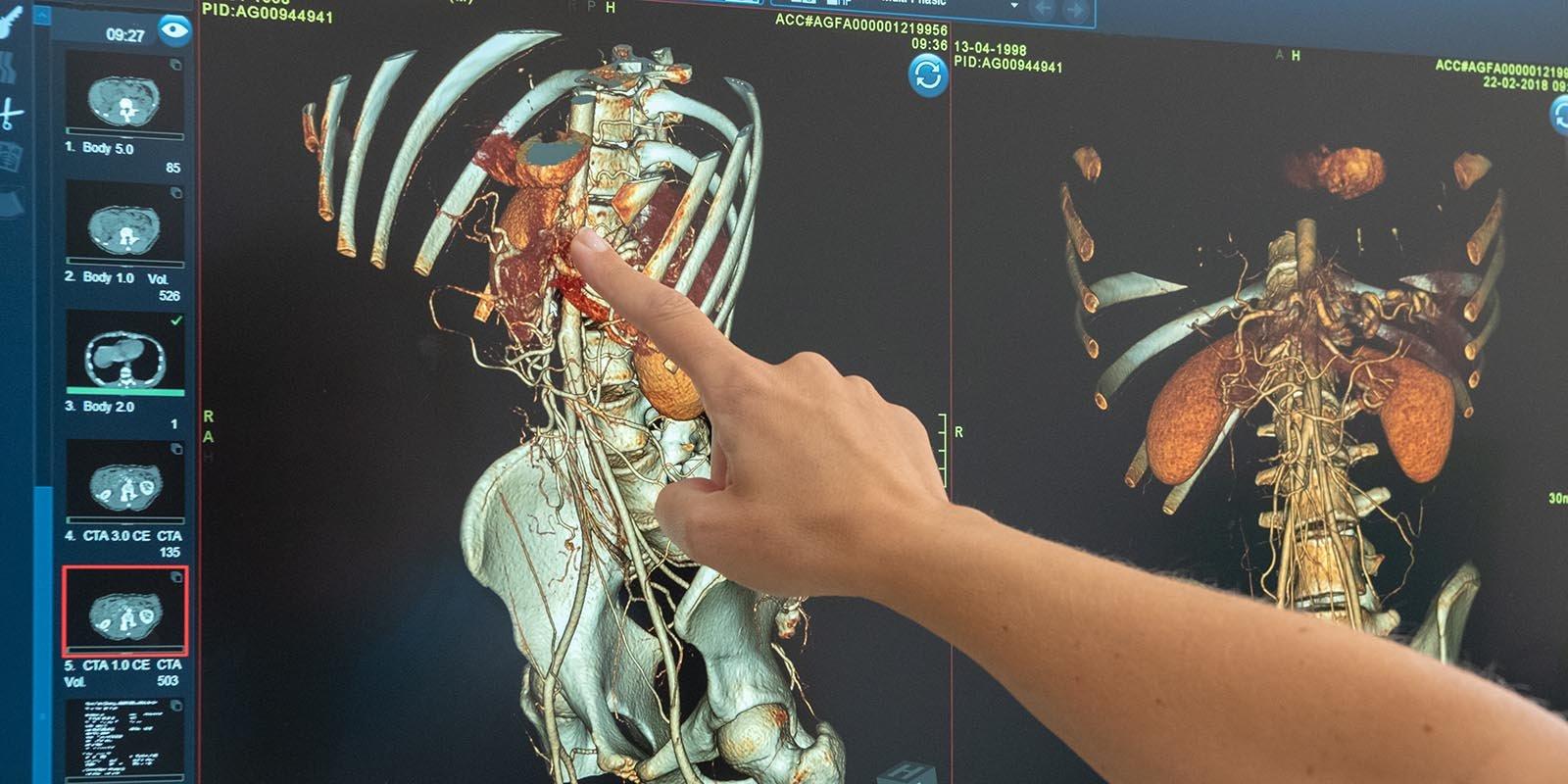 Точная диагностика и высокие технологии: как выявляют злокачественные образования
