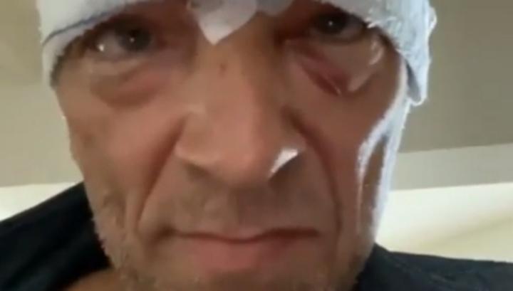 Венсан Кассель попал в больницу после падения со скутера