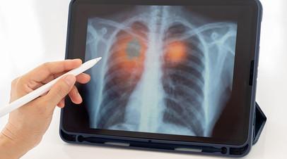 Диагностика на автомате: учёные создали программу по определению степени тяжести поражения лёгких при COVID-19 без врача