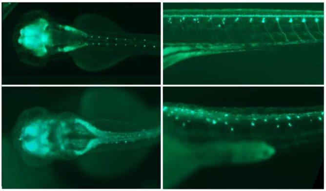 Найден ген, который играет важную роль в развитии мозга
