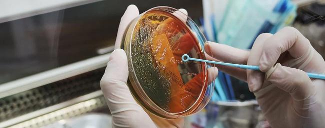 Раковые клетки, выращенные в лаборатории, сильно отличаются от человеческих