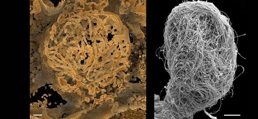 Ученые нашли в янтаре древнейшую сперму