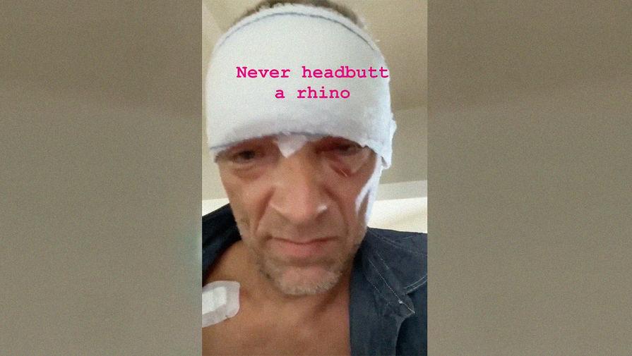 Венсан Кассель пострадал в аварии