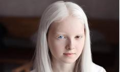 11-летняя девочка-альбинос с гетерохромией из Чечни поражает своей волшебной красотой